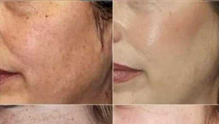 Herbalife skin booster,  all types skin problem solution